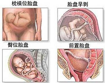 剖腹产过程图