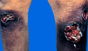 三期梅毒疹(梅毒性树胶肿)
