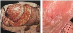 三期梅毒疹