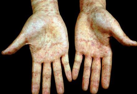 二期梅毒疹(手掌)