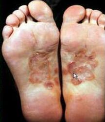 二期梅毒疹(环状梅毒疹)