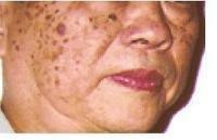 脂溢性角化病
