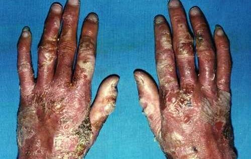 大疱性表皮松解症