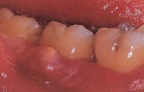 成人牙周炎