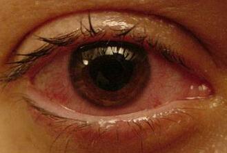 前葡萄膜炎