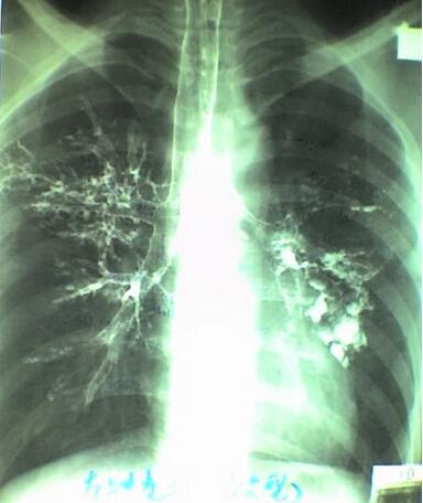 肺的支气管造影图