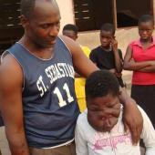 加纳面部畸形少女借微博筹手术款