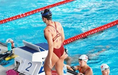 拔罐印的游泳选手
