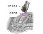 超声传感器发出人耳听不见的超声波,当超声通过腹部密度不同的组织时,会折返回强弱不等的声波。电脑将把这些强弱不同的声波转化成相应的图像并显示在屏幕上